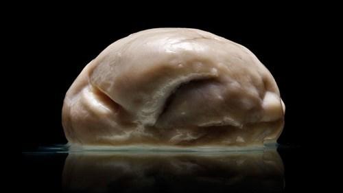 A Very Strange Brain