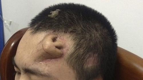 nose,forehead,science,transplant,medicine