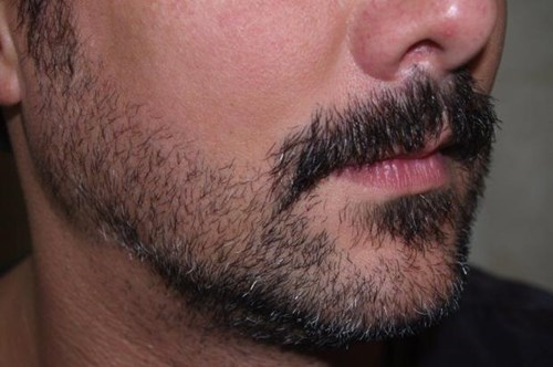 Brooklyn Hipsters Are Feeding a New Facial Hair Transplant Craze