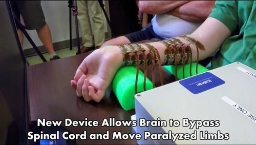 Bypassing the Spinal Cord.