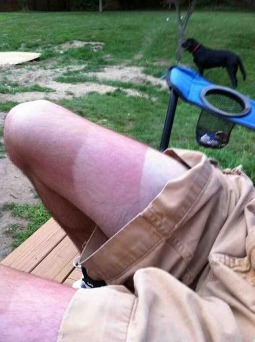 tan,shorts,poorly dressed,sunburn,stripes