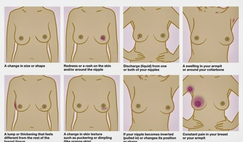 Breast Cancer Awareness ~ Check yourself~ What to look for