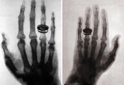 That is an incredibly old x-ray.