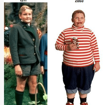 Childhood Obesity: Then and Now