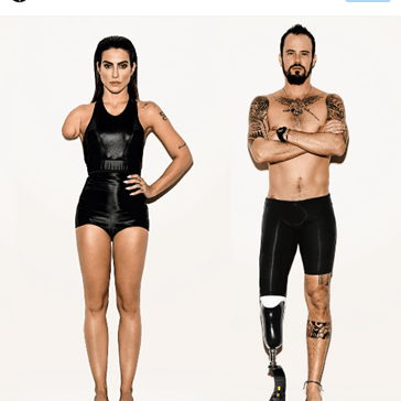 Photoshop FAIL of the Day: Vogue Brazil & the Non-Paralympic Models