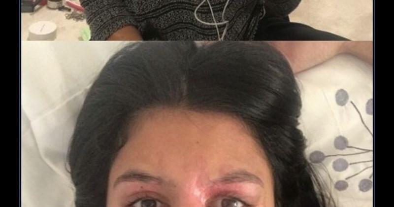 mujer que fue rociada con acido
